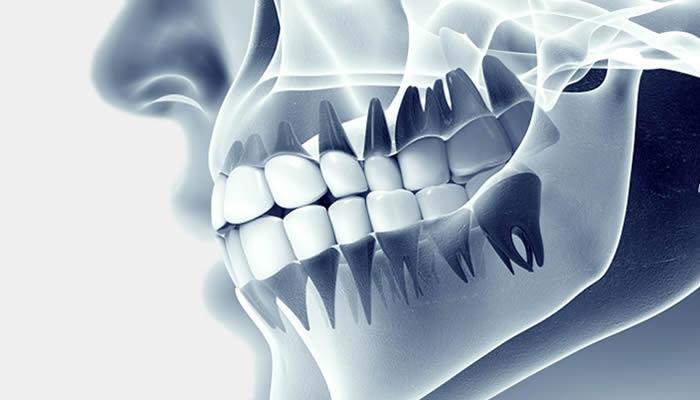 Dental Radyoloji