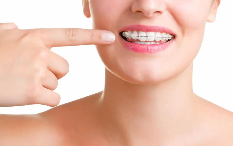 Diş Teli Takanlar Nelere Dikkat Etmeli?