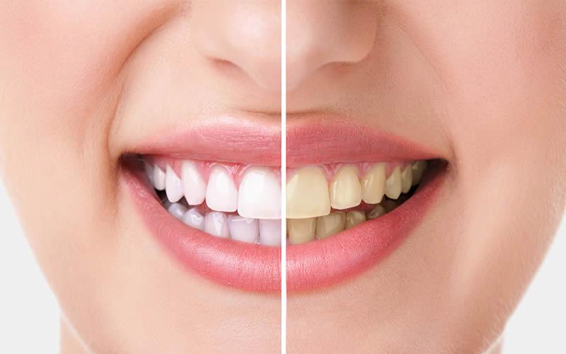 Dişlerde Renk Değişimi