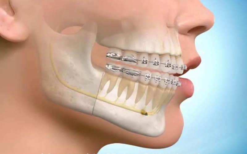 Ortodontik Tedavi İle Ameliyatsız Yüz Estetiği
