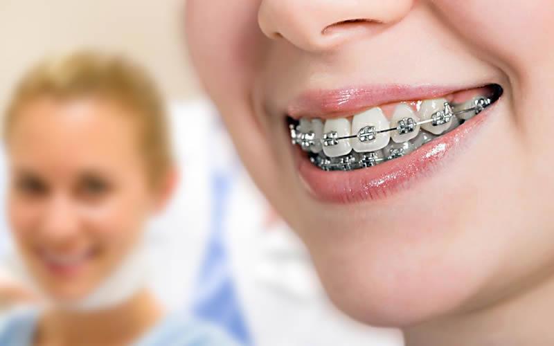 Ortodonti Tedavisi Aşamaları