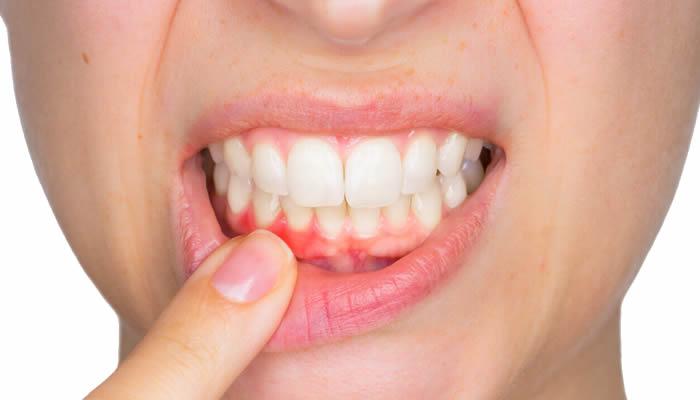 Periodontoloji Diş Eti Hastalıkları