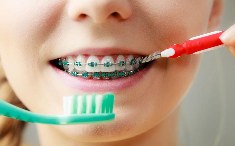 Ortodonti Tedavisinde Arayüz Fırçası Kullanımı