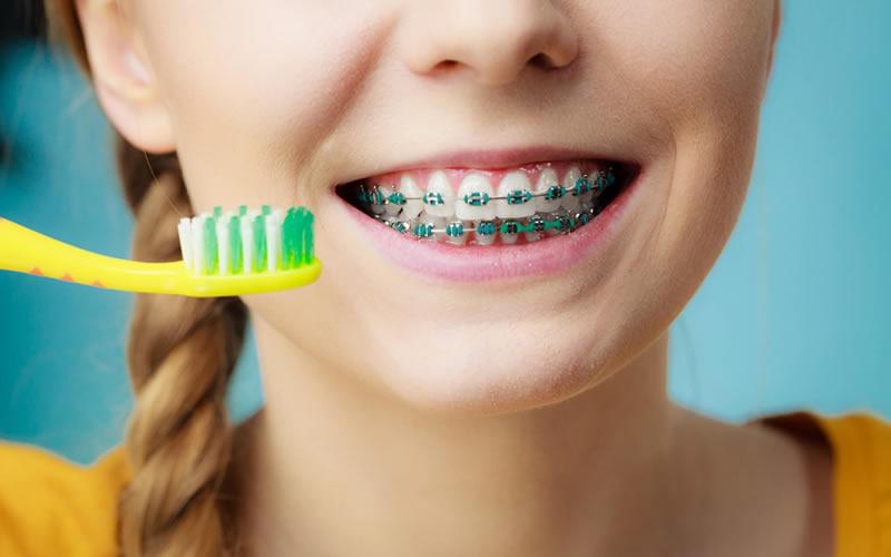 Ortodonti Tedavisin'de Diş Fırçalama