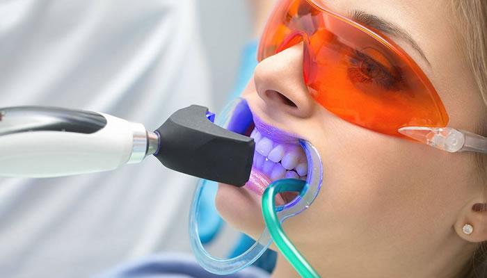 Diş Beyazlatma Estetik Diş Tedavileri
