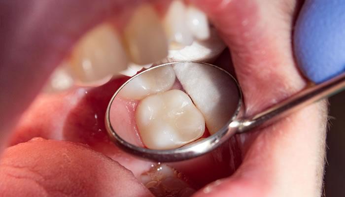 Inley Onley Estetik Diş Tedavileri