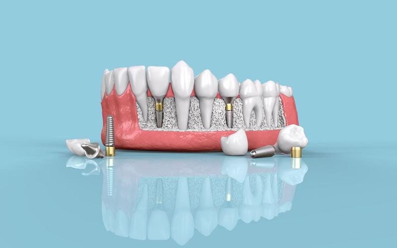 Diş İmplantların Tedavi Süresi Ne Kadardır?
