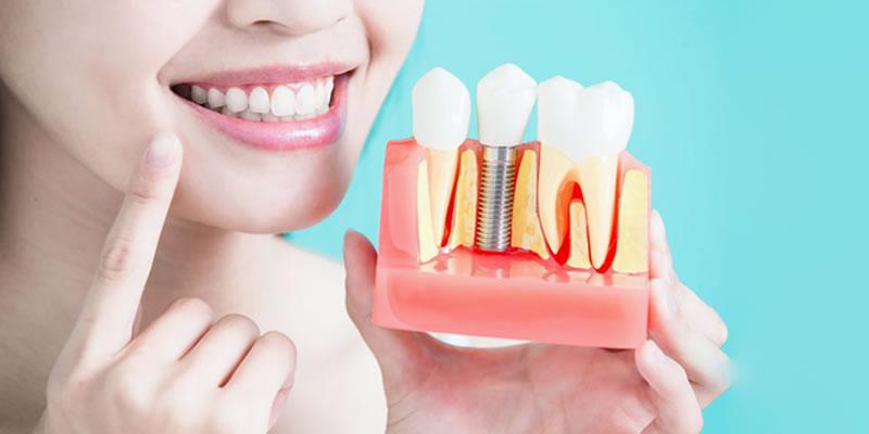 Dişlere İmplant Uygulamalarını Kimler Yapabilir?