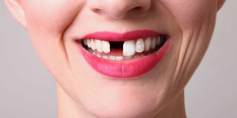 Eksik Dişler Tedavi Edilmezse Ne Olur?